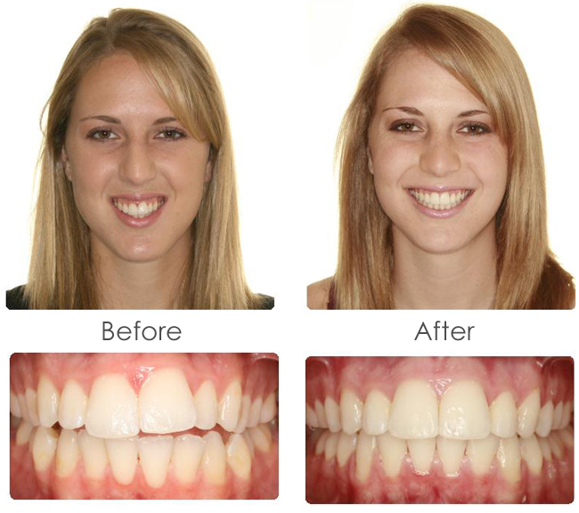 before-after-brace