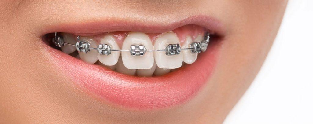Different Braces Wires | Damon Braces G1 Dental Practice Nhs Dentist Glasgow City